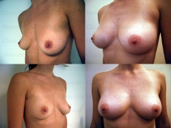 Brustvergrößerung mit stammzellangereichertem Eigenfett